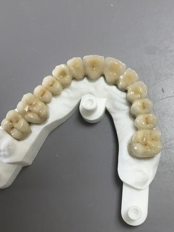 Prothèses dentaires en métal (CRCO et Titane)