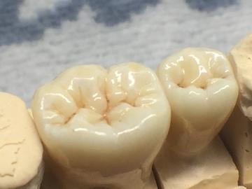 Prothèses dentaires en zircone