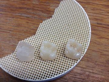 Prothèses dentaires en disilicate de lithium